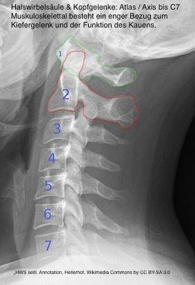 HWS-Röntgenbild-mittel